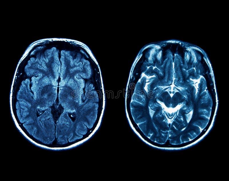 Mri scan stock image. Image of neurology, anatomy, exam - 50546863