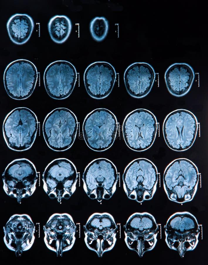 Mri Brain Scan royalty free stock photos