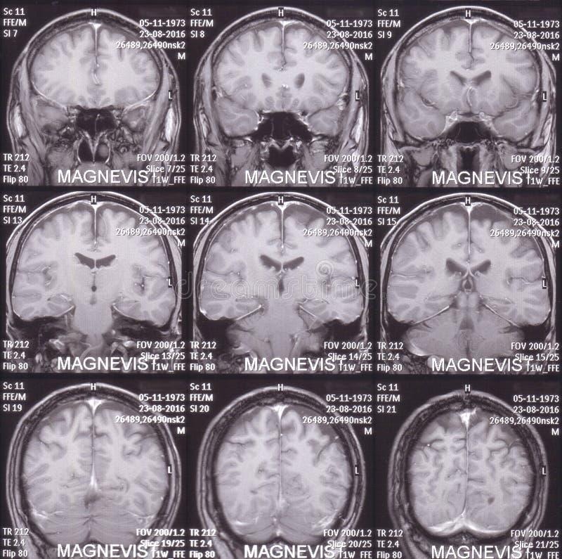 MRI scan image stock image. Image of anatomy, diagnostic - 80063777