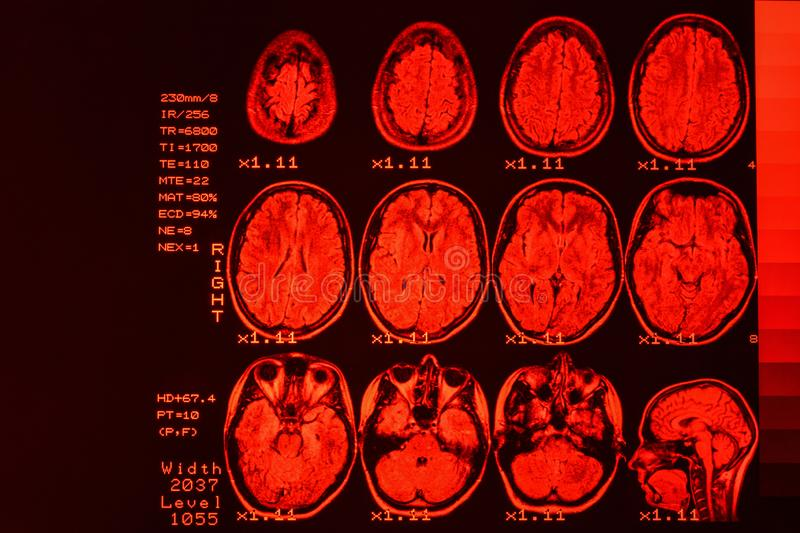 MRI scan or magnetic resonance image of head and brain scan. The result is an MRI of the brain with values and numbers with red royalty free stock images