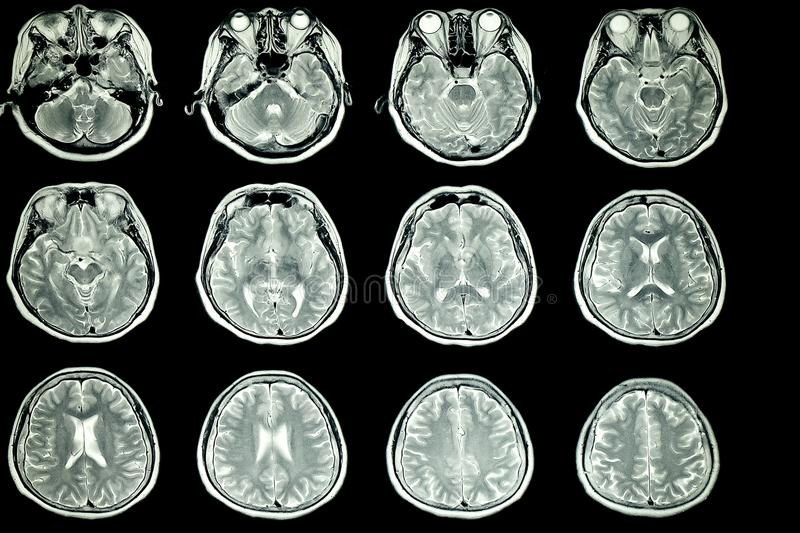 MRI scan of patient brain stock photo