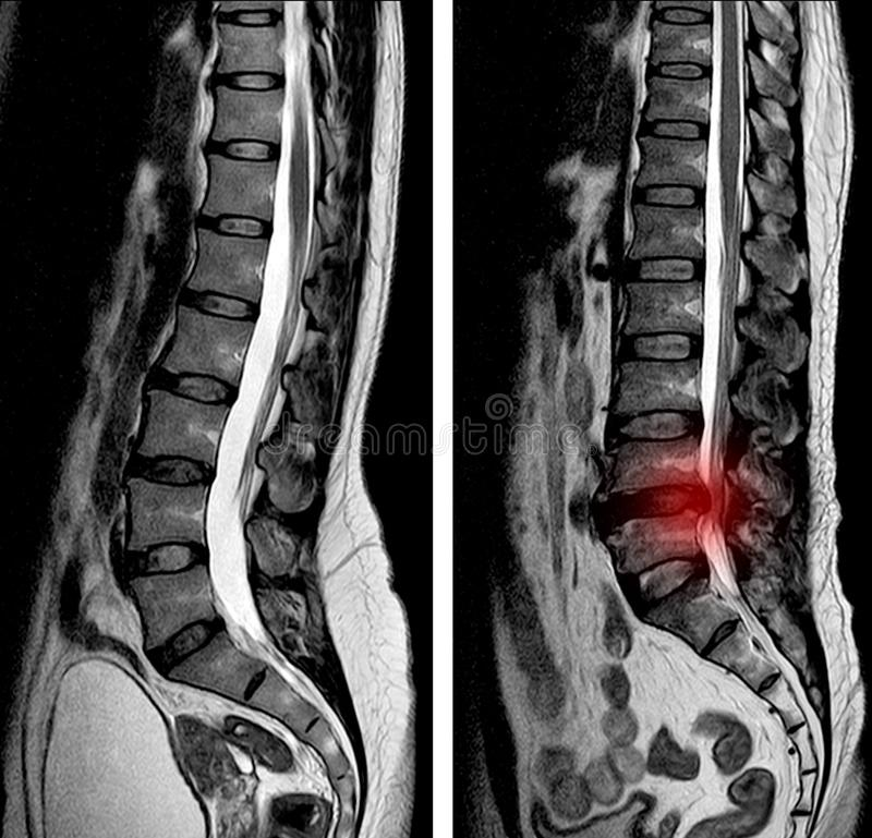 MRI scan sagittal view Lumbosacral spine has straightening lumbar alignment, L5-S1. Is moderate posterior inferior disc protrusion causes bilateral S1 royalty free stock photography