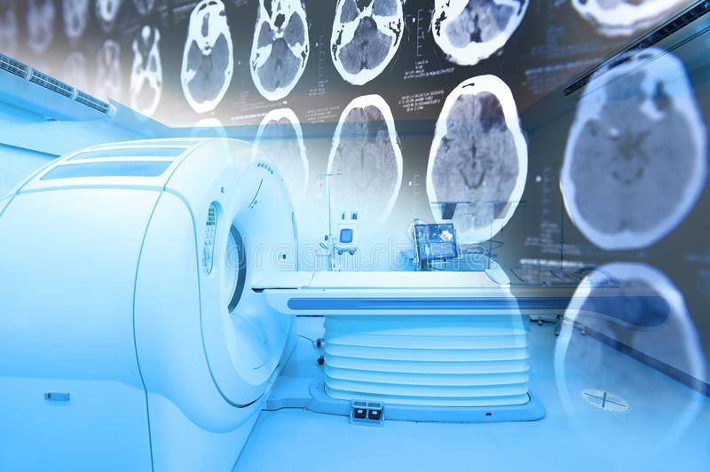 MRI scanner room with images from a computerized tomography of the brain. Take with art lighting and blue filter royalty free stock image