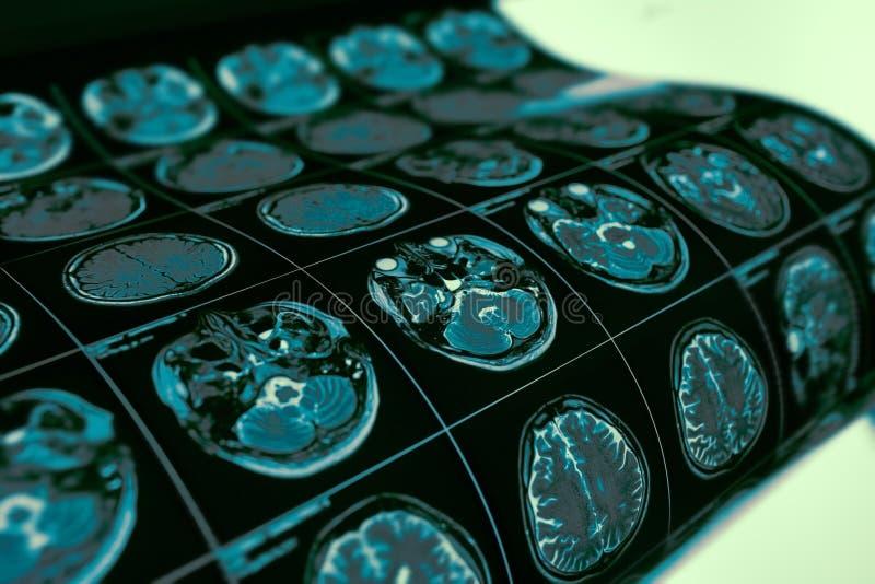 MRI-undersökningsfilm av det tålmodiga huvudet för ` s som en medicinsk diagnostik b arkivbild