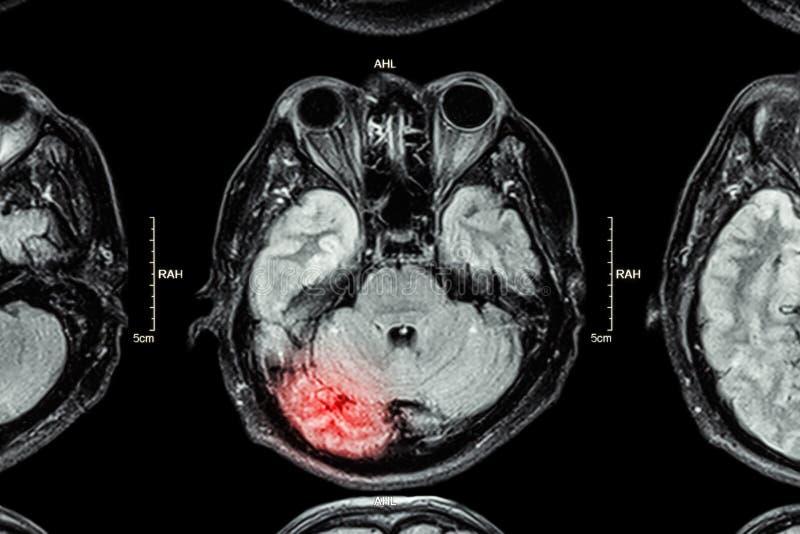 MRI van hersenen: hersenenverwonding stock afbeeldingen
