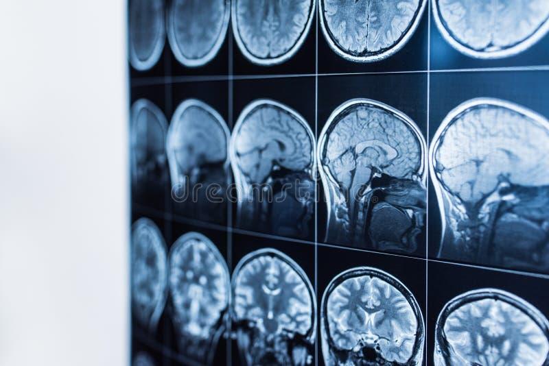 MRI van het hoofd en de hersenen van een persoon, tomografie stock foto