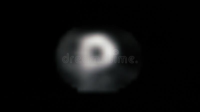 MRT av hjärtan och de koronara skyttlarna royaltyfri foto