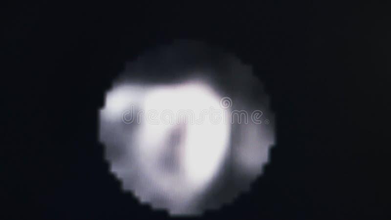 MRT av hjärtan och de koronara skyttlarna arkivbilder