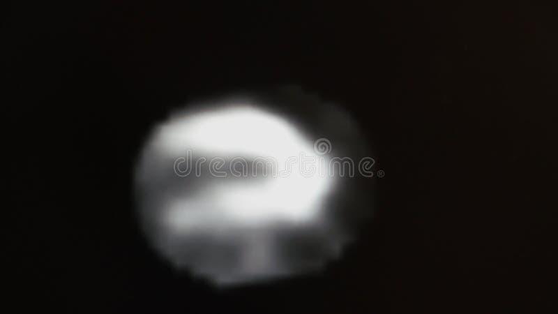 MRT av hjärtan och de koronara skyttlarna fotografering för bildbyråer