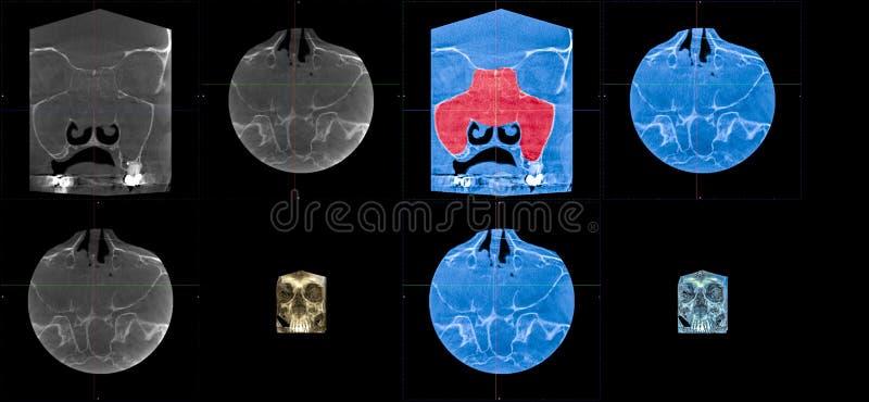 MRT, rusinusitis crônico da origem alérgica, enchimento total do polyposis da cavidade óssea frontal imagens de stock