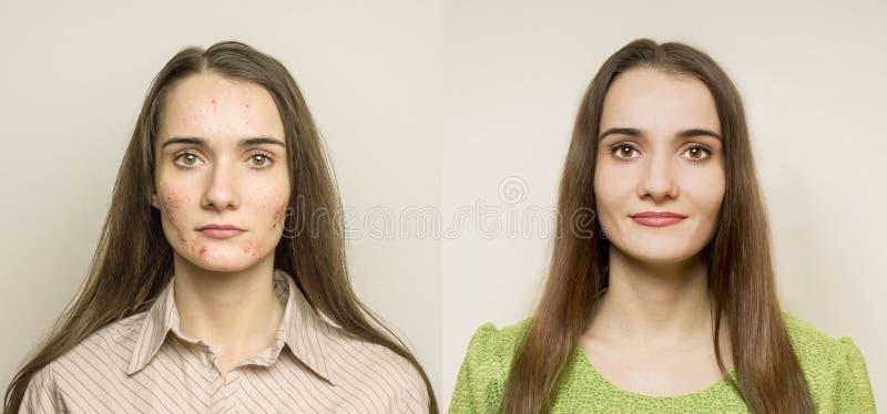Muchacha con acné foto de archivo