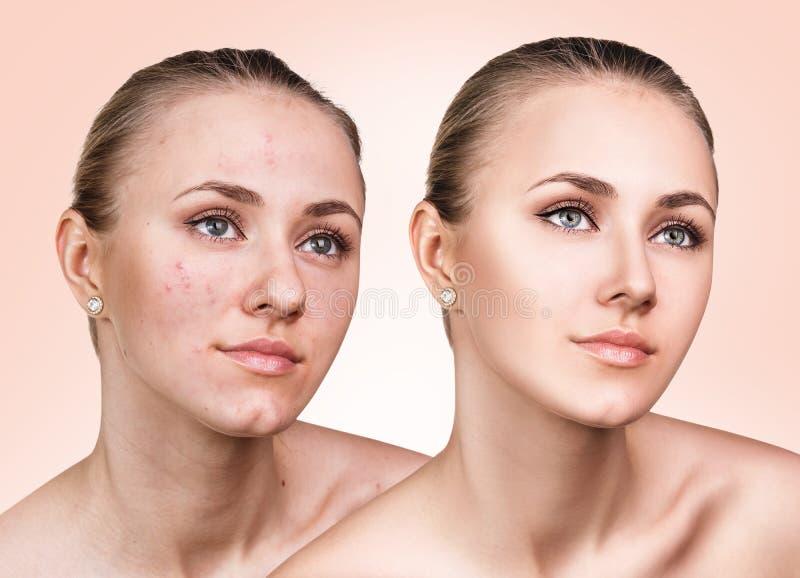 Muchacha con acné antes y después del tratamiento imagen de archivo libre de regalías