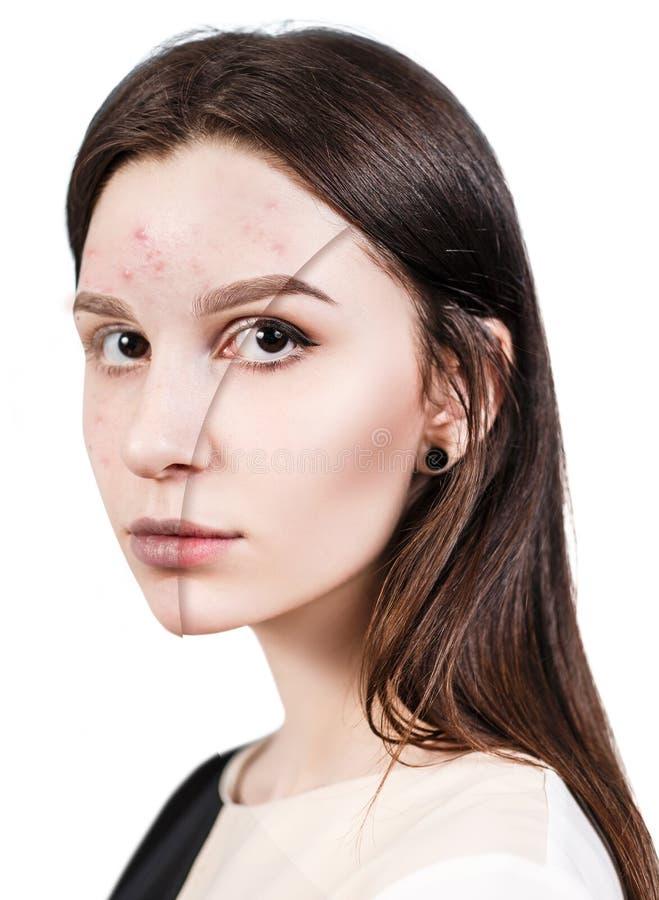 Muchacha con acné antes y después del tratamiento foto de archivo