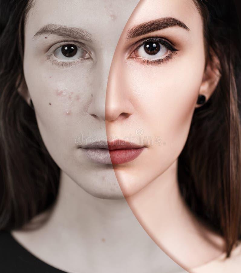Muchacha con acné antes y después del tratamiento imágenes de archivo libres de regalías