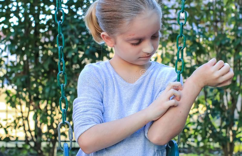 Muchacha con eczema en los brazos y cara fotos de archivo libres de regalías