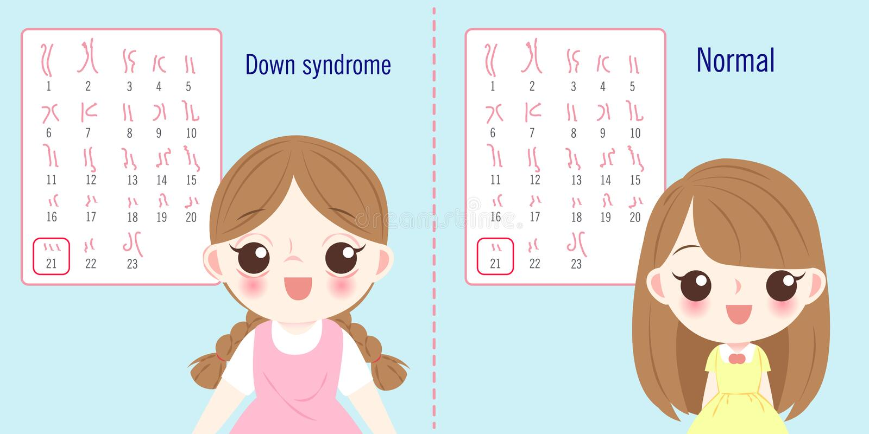 Muchacha con el concepto de Síndrome de Down stock de ilustración