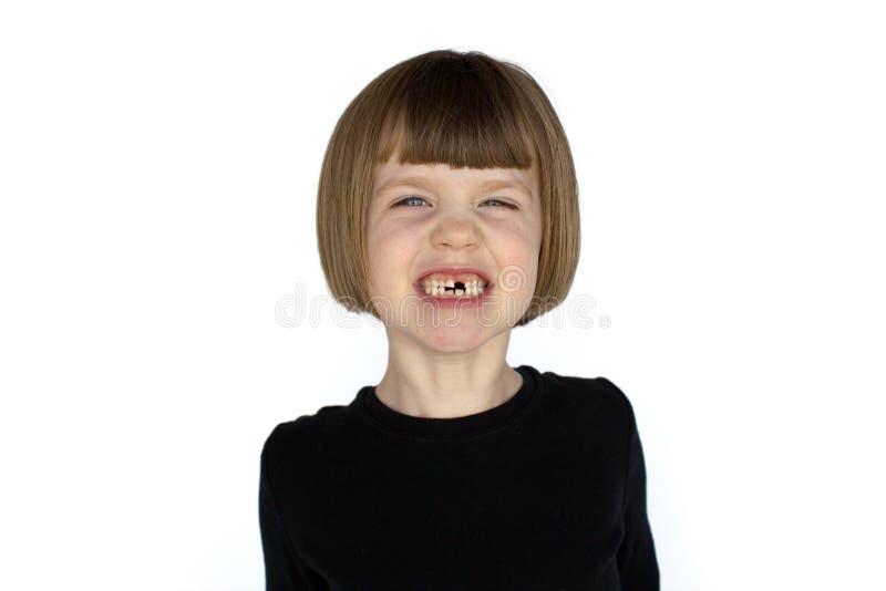 Muchacha con la sonrisa que falta de los dientes foto de archivo
