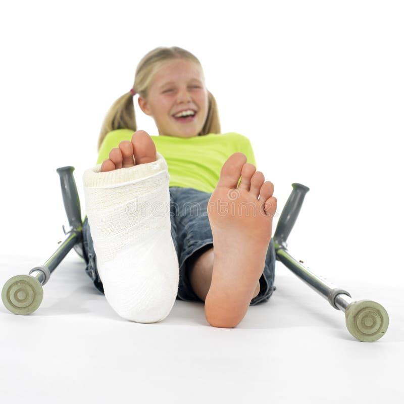 Muchacha con una pierna quebrada fotografía de archivo libre de regalías