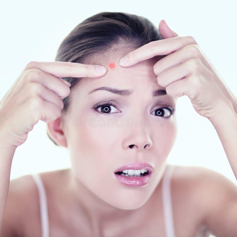 Muchacha del cuidado de piel del punto del defecto de la piel de la espinilla del acné imagen de archivo