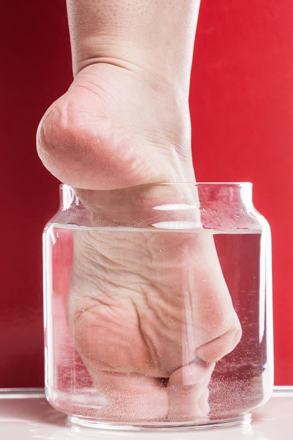 Muchacha del pie con una piel seca y áspera y callos en el moi del talón imagen de archivo libre de regalías