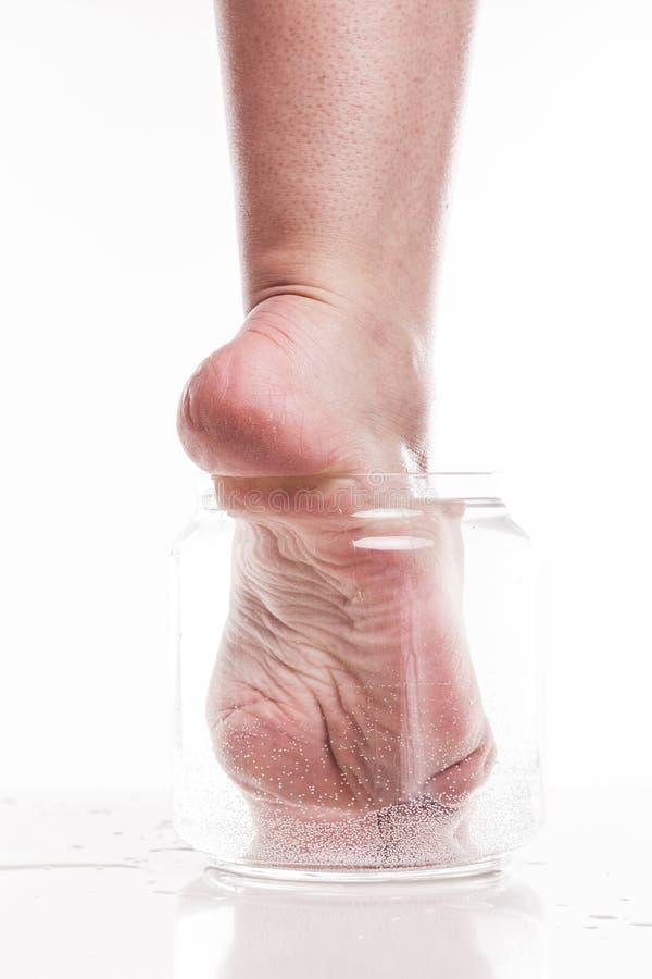 Muchacha del pie con una piel seca y áspera y callos en el moi del talón fotografía de archivo libre de regalías