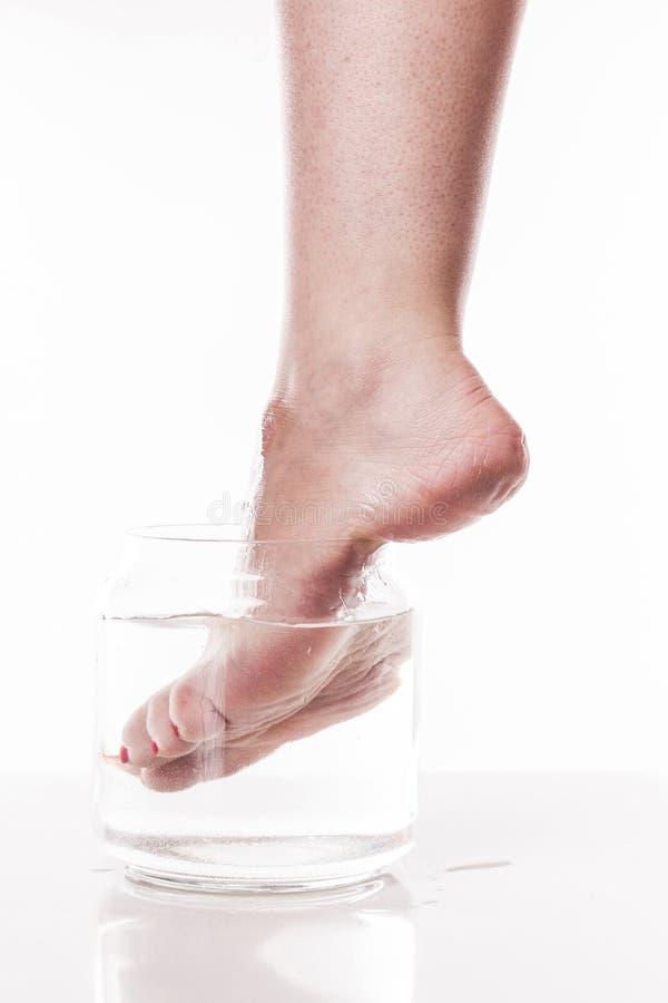 Muchacha del pie con una piel seca y áspera y callos en el moi del talón foto de archivo libre de regalías