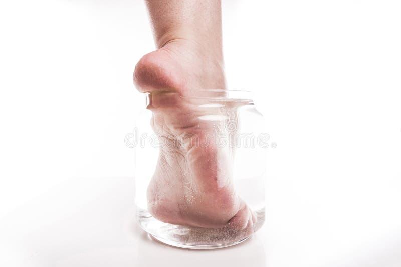Muchacha del pie con una piel seca y áspera y callos en el moi del talón foto de archivo