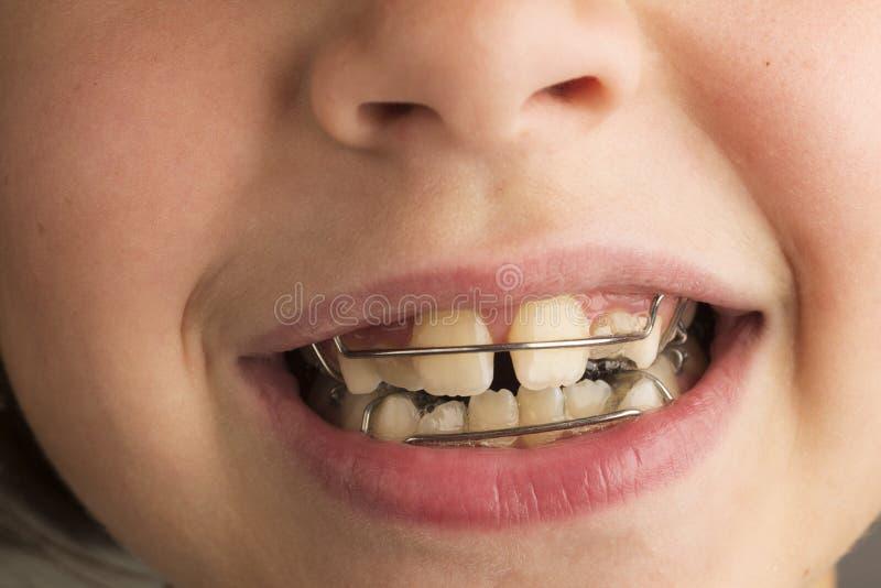 Muchacha que lleva un aparato dental ortodóntico fotografía de archivo