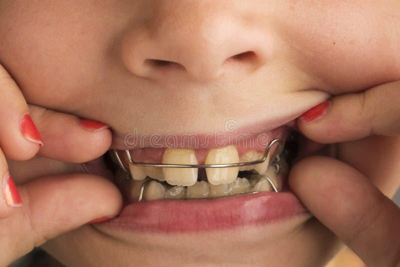 Muchacha que lleva un aparato dental ortodóntico fotografía de archivo libre de regalías