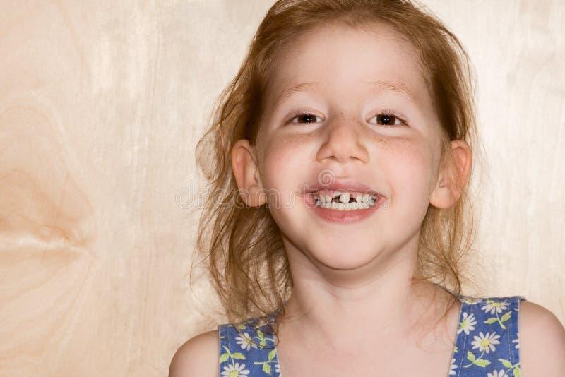 Muchacha sonriente que la muestra caida de los dientes del snaggle imagen de archivo libre de regalías