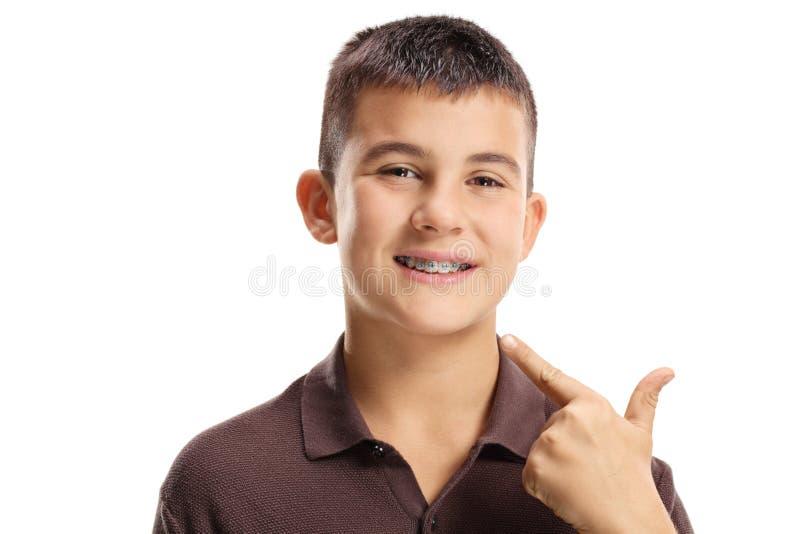 Muchacho con los apoyos dentales que señala en la boca foto de archivo libre de regalías