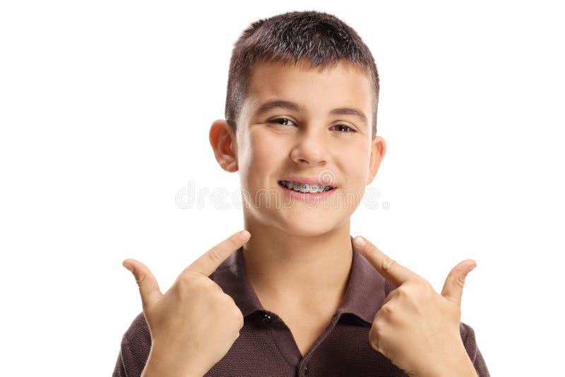 Muchacho con los apoyos dentales que señala en la boca con ambos fingeres fotografía de archivo libre de regalías