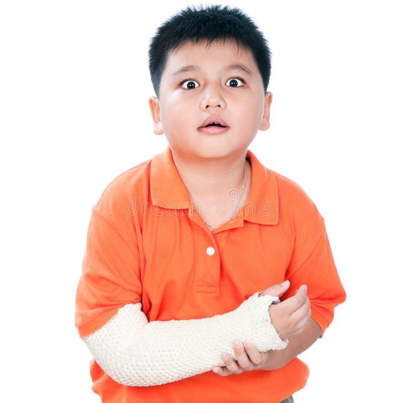 Muchacho joven con el brazo quebrado en molde de yeso foto de archivo