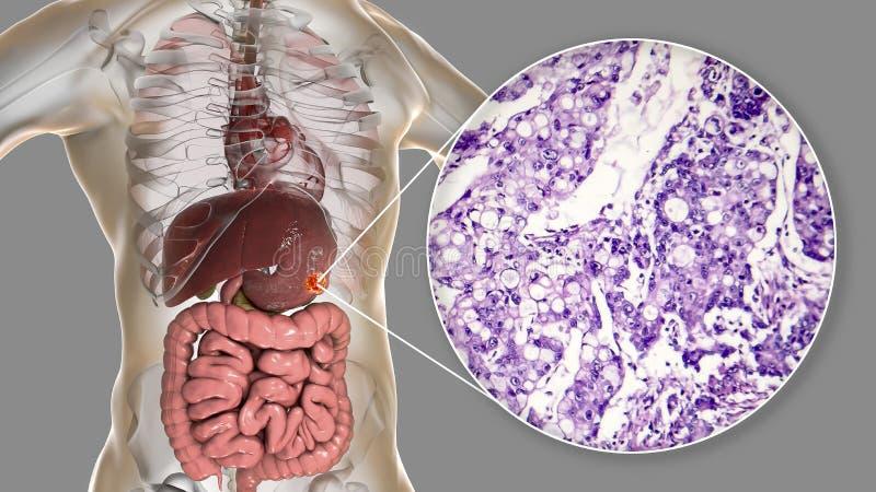 Mucinous adenocarcinoma żołądek, ilustracja i micrograph, ilustracja wektor
