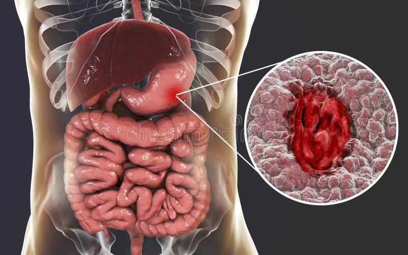 Mucosa żołądek z wrzodem trawiennym ilustracji
