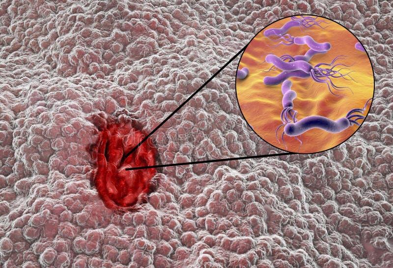 Mucosa żołądek z wrzodu trawiennego i bakterii Helicobacter odźwiernikami ilustracja wektor