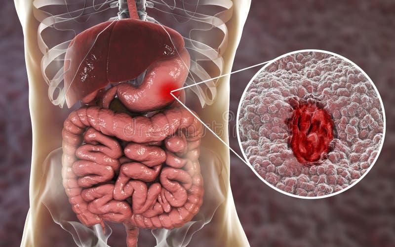 Mucosa van maag met maagzweer vector illustratie