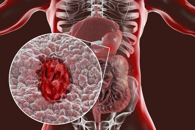 Mucosa van maag met maagzweer royalty-vrije illustratie