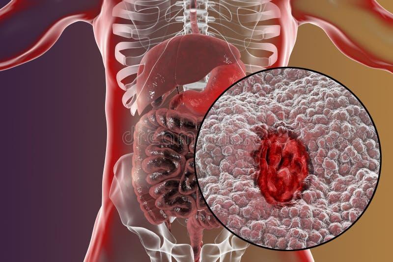 Mucosa van maag met maagzweer stock illustratie