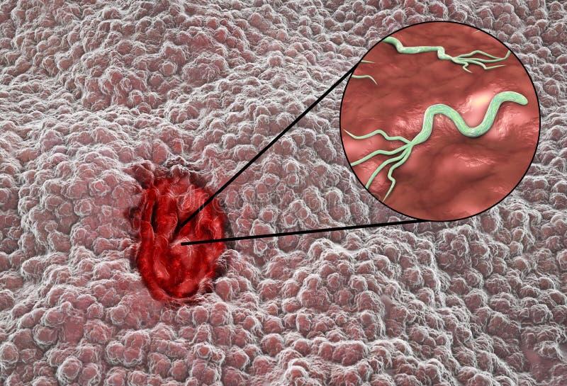 Mucosa van maag met maagzweer en bacteriepylori van Helicobacter vector illustratie