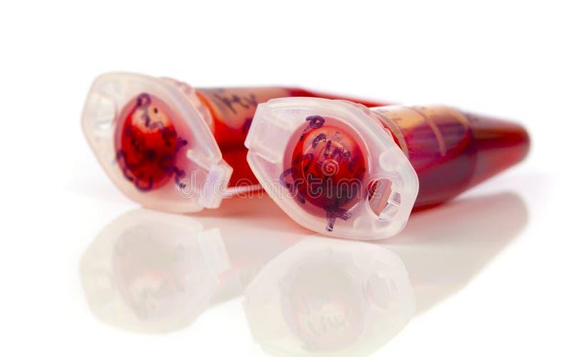 Muestra de células madres en el tubo de la reacción fotografía de archivo