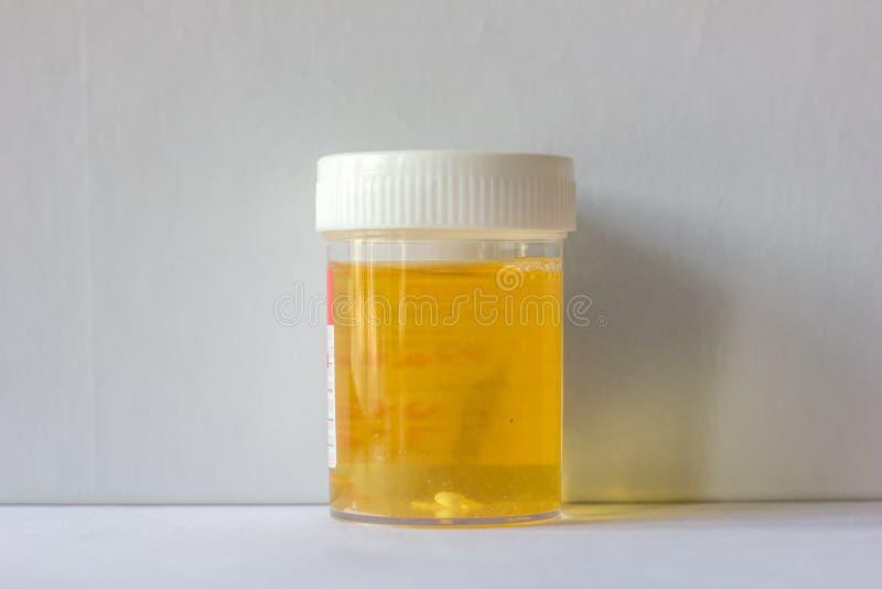 Muestra de orina recogida en un envase para la cultura de la orina que está en un fondo blanco imagen de archivo
