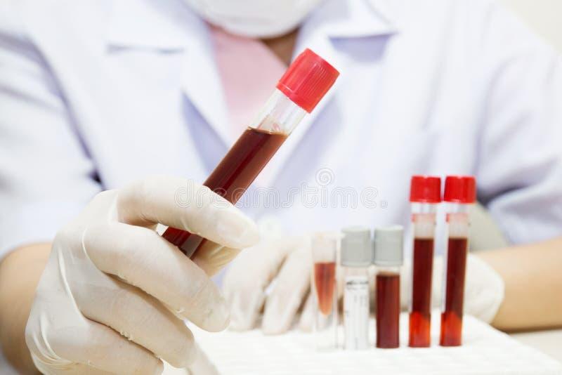 Muestra de sangre fotografía de archivo