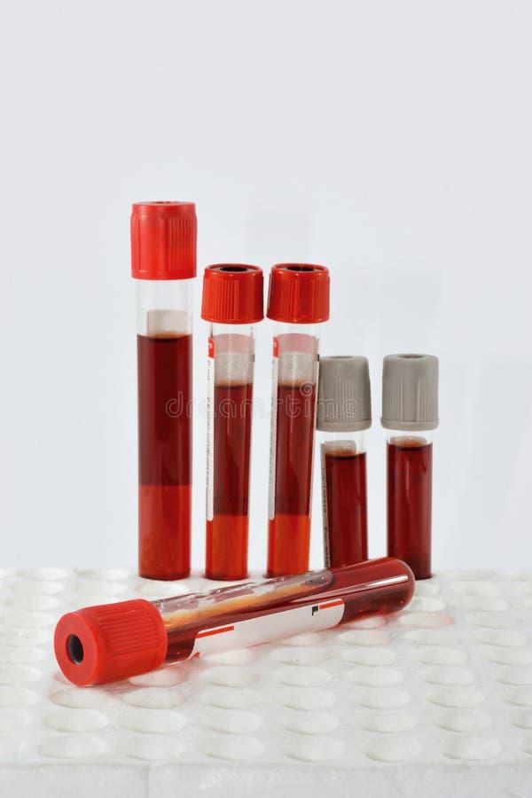 Muestra de sangre de los tubos fotos de archivo libres de regalías
