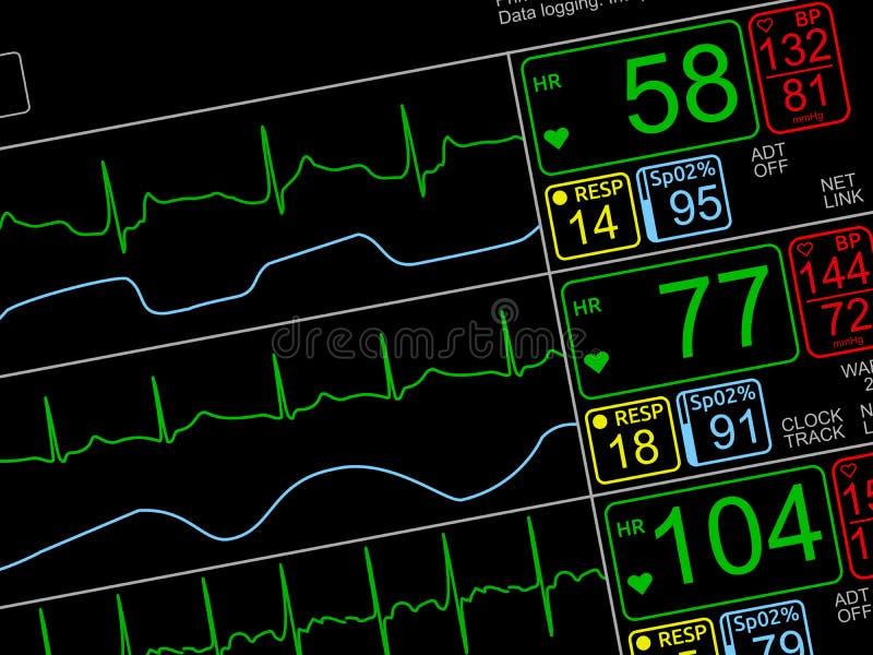 Muestras vitales pacientes del ` s en monito de ICU fotos de archivo
