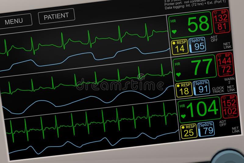 Muestras vitales pacientes del ` s en monitor de ICU imagen de archivo libre de regalías