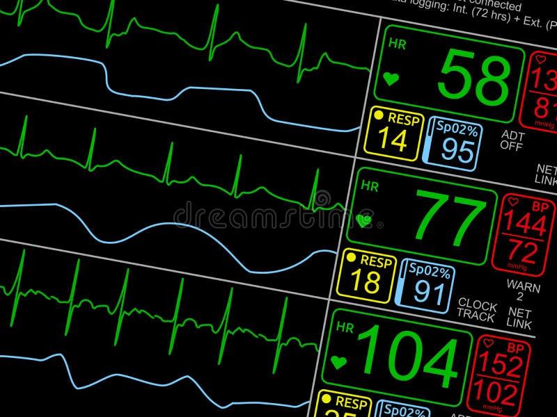 Muestras vitales pacientes del ` s en monitor de ICU fotos de archivo