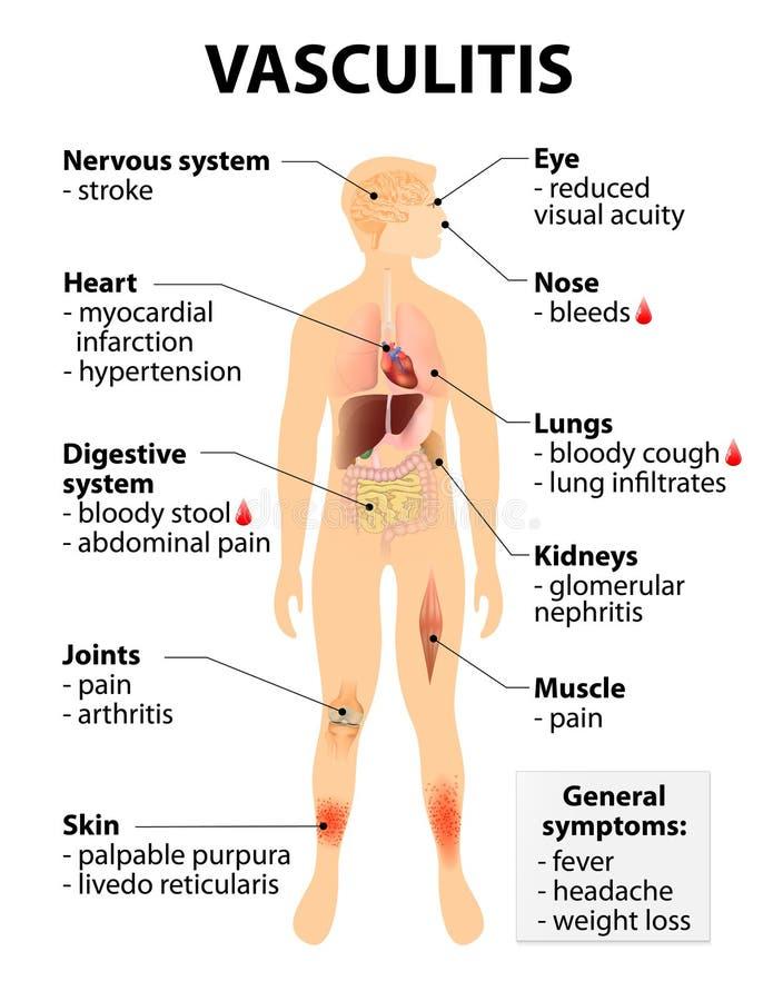 Muestras y síntomas de la vasculitis libre illustration