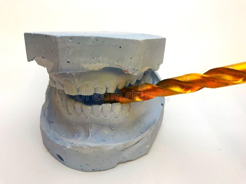 Muffa dentaria del modello del gesso dei denti in gesso con gli occhiali da sole e le cuffie immagini stock
