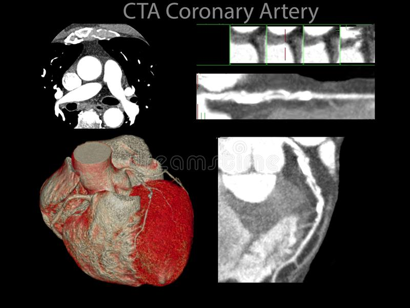 Muiti view of CTA Coronary artery 2D and 3D rendering image. Muiti view of CTA Coronary artery 2D and 3D rendering.CT angiography for heart disease from CT vector illustration